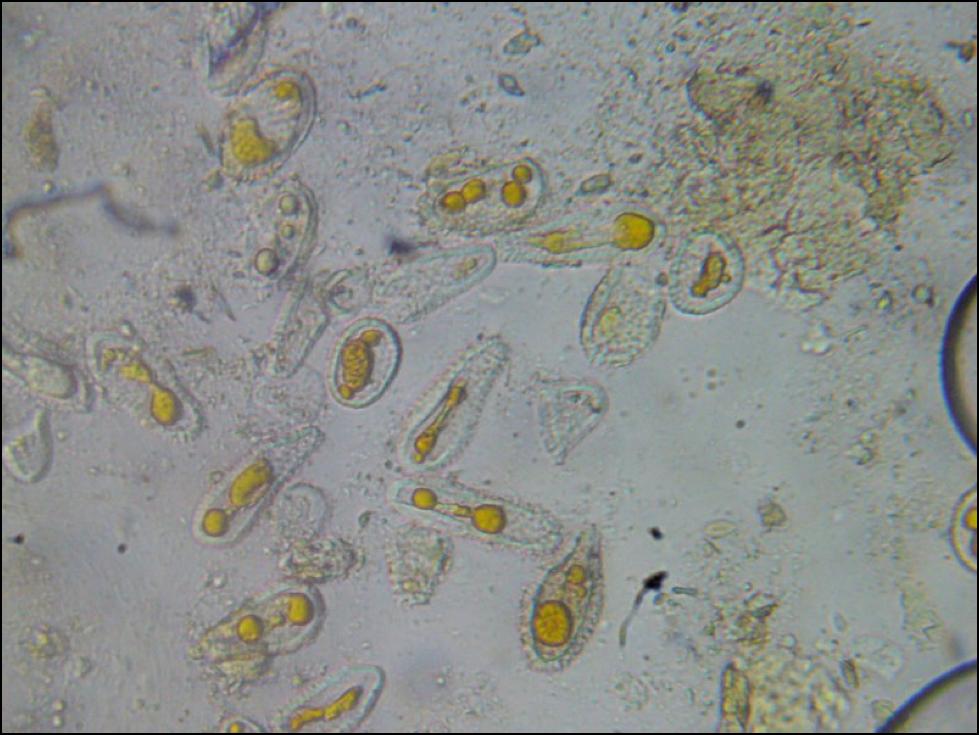 763502aa66 Nosema cereanae Archives - Scientific Beekeeping