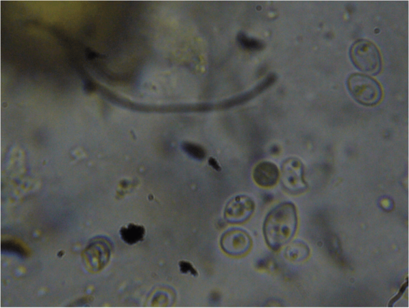 Figure 11. At higher magnification, one can clearly see what appear to be organelles in the unidentified organism.